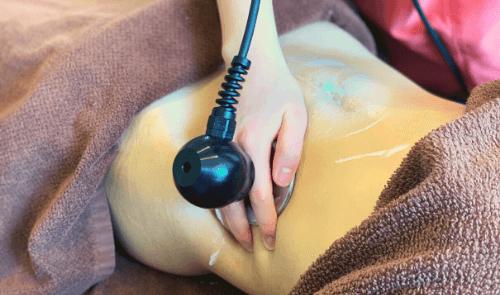 脇腹へのラジオ波施術